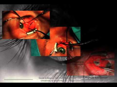 Thyroid Eye Disease: The Battle Of The Bulge, Part II