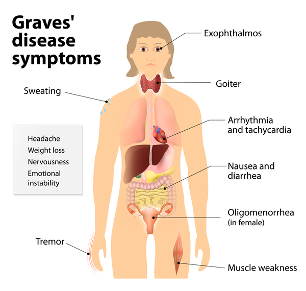 Síntomas de la enfermedad de Graves